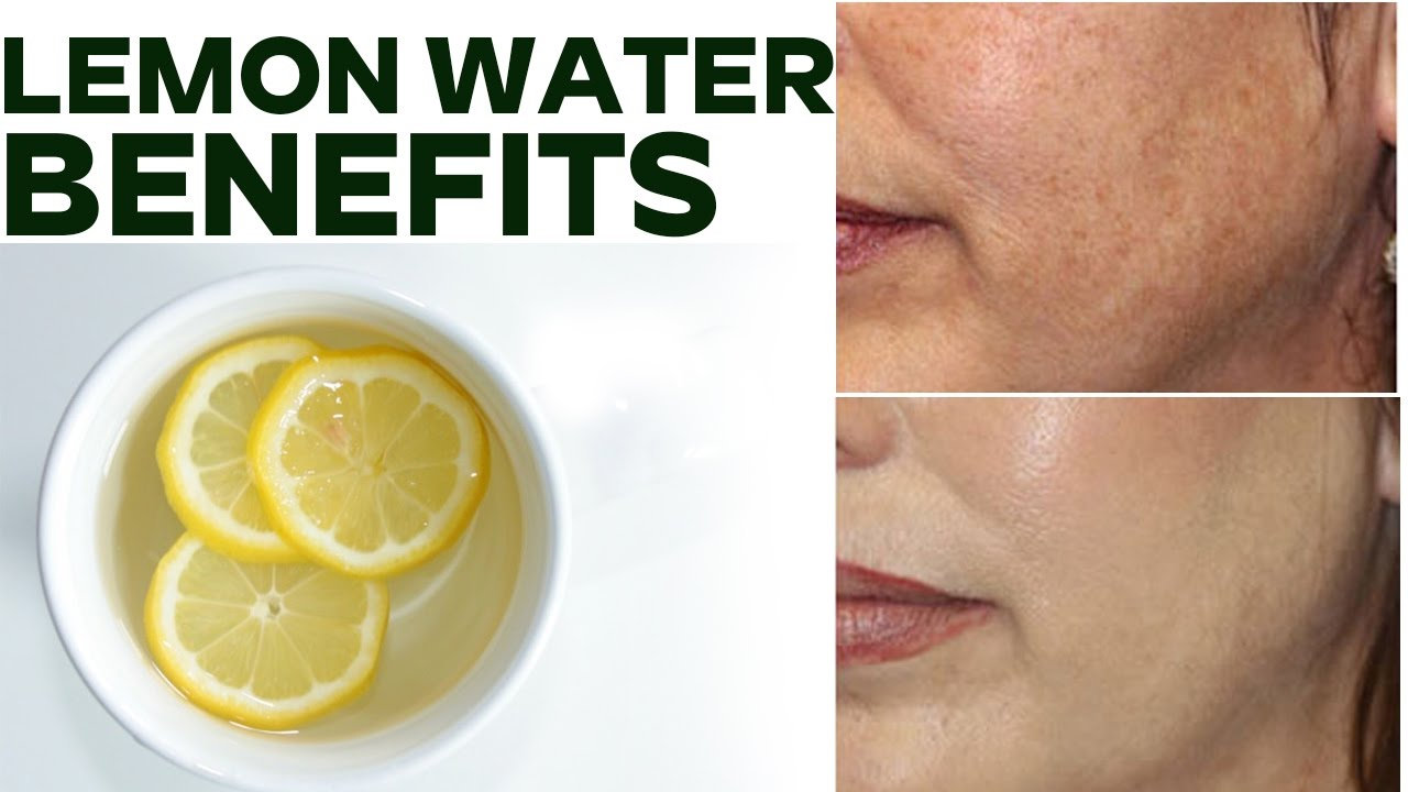 Drinking Warm Lemon Water In The Morning Benefits